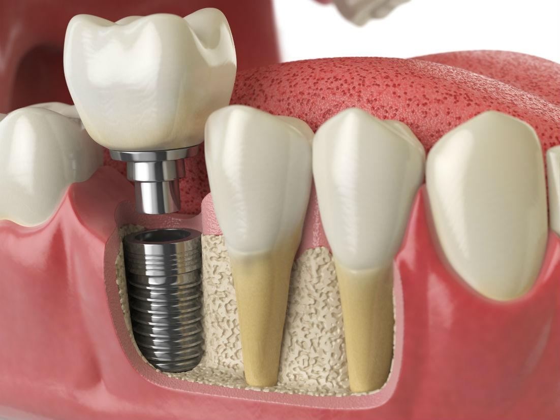 Time to Consider Dental Implants?
