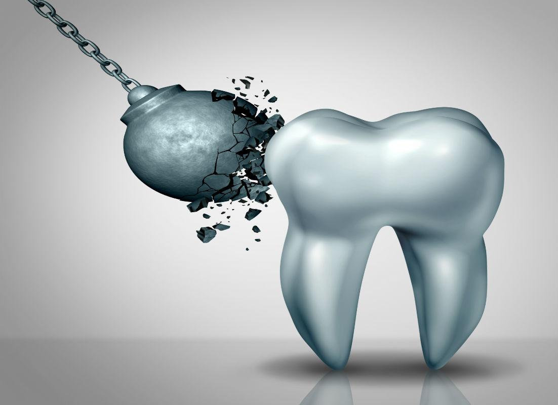 What is Tooth Enamel Erosion and Can It Be Treated?